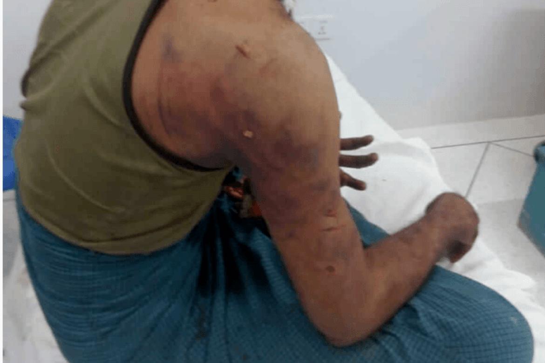 En kristen rohingya som ble skadet og lagt inn på sykehus etter angrepet på en kirke i en flyktningleir 26. januar.